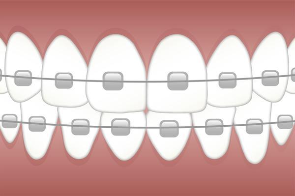 ortodoncja poznań